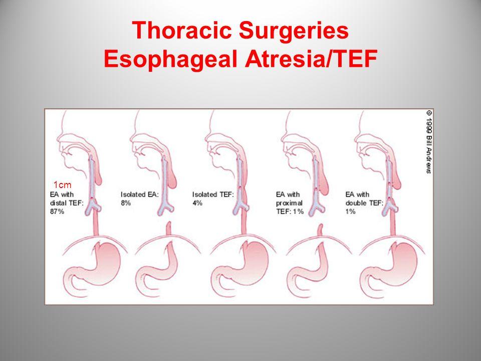 Thoracic Surgeries Esophageal Atresia/TEF 1cm