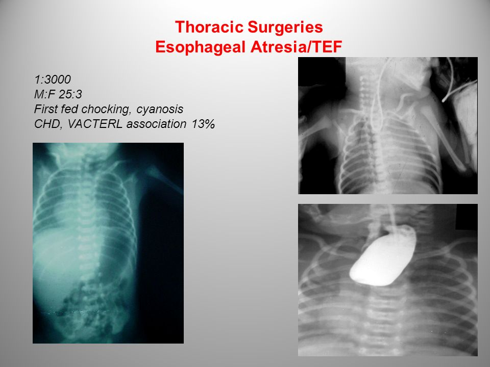 Thoracic Surgeries Esophageal Atresia/TEF 1:3000 M:F 25:3 First fed chocking, cyanosis CHD, VACTERL association 13%