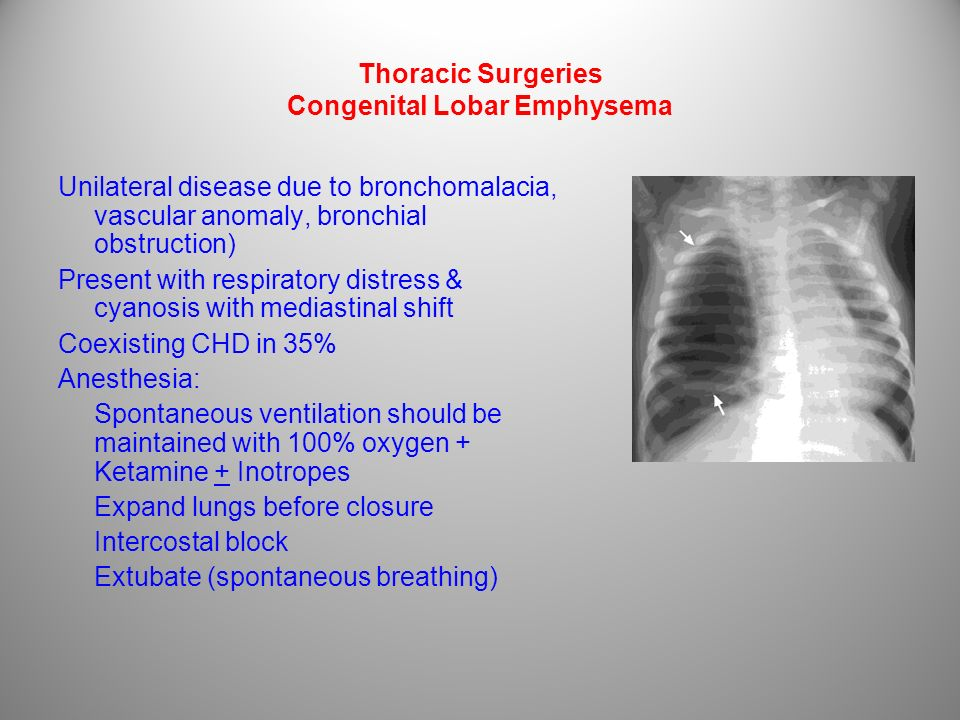 Thoracic Surgeries Congenital Lobar Emphysema Unilateral disease due to bronchomalacia, vascular anomaly, bronchial obstruction) Present with respirat