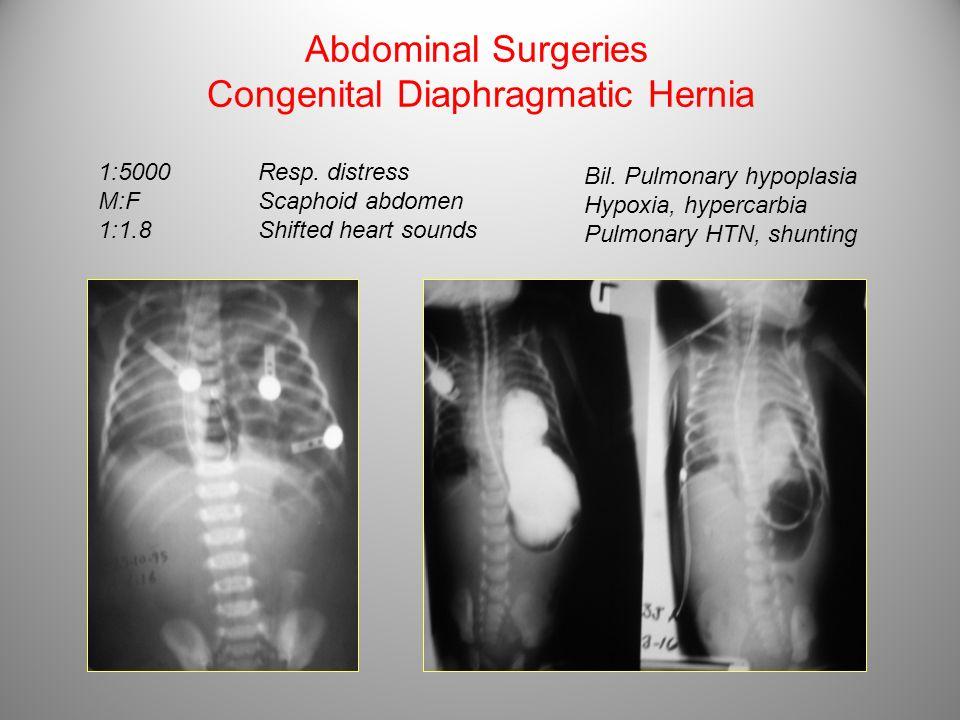 Abdominal Surgeries Congenital Diaphragmatic Hernia 1:5000 M:F 1:1.8 Resp. distress Scaphoid abdomen Shifted heart sounds Bil. Pulmonary hypoplasia Hy