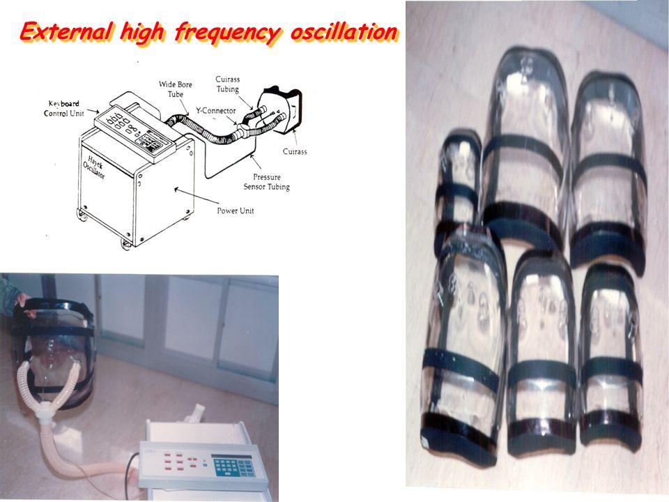 External high frequency oscillation