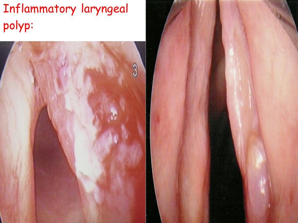 Inflammatory laryngeal polyp: