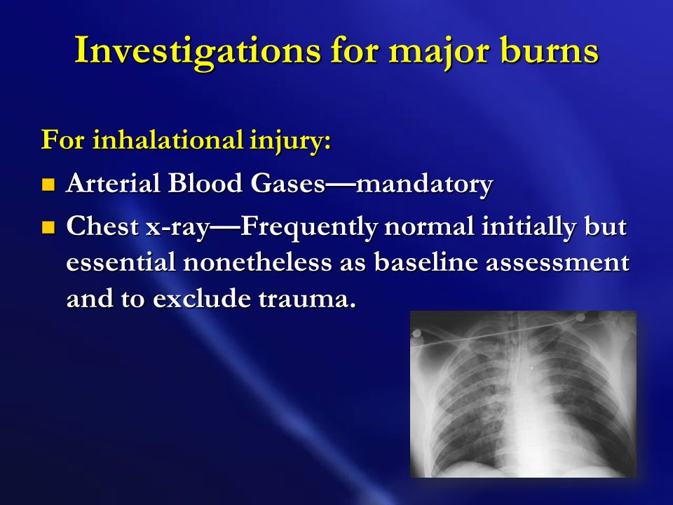 Investigations for major burns General Full blood count, packed cell volume, urea and electrolyte concentration, clotting screen, liver enzymes Full b