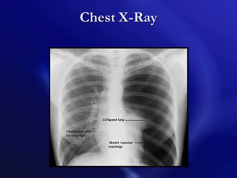 Signs and Symptoms A pneumothorax may be present with signs and symptoms similar to several other problems, including aspiration of gastric contents,