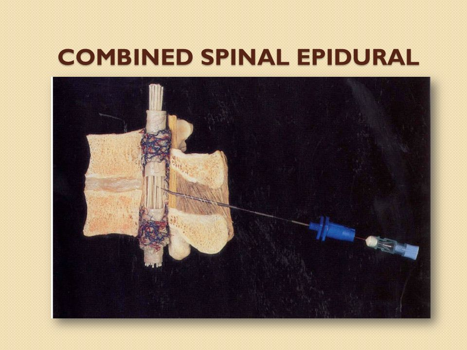 COMBINED SPINAL EPIDURAL