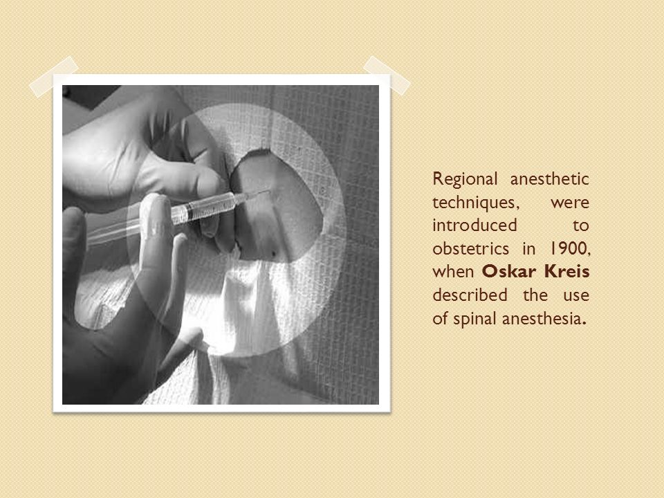 Regional anesthetic techniques, were introduced to obstetrics in 1900, when Oskar Kreis described the use of spinal anesthesia.