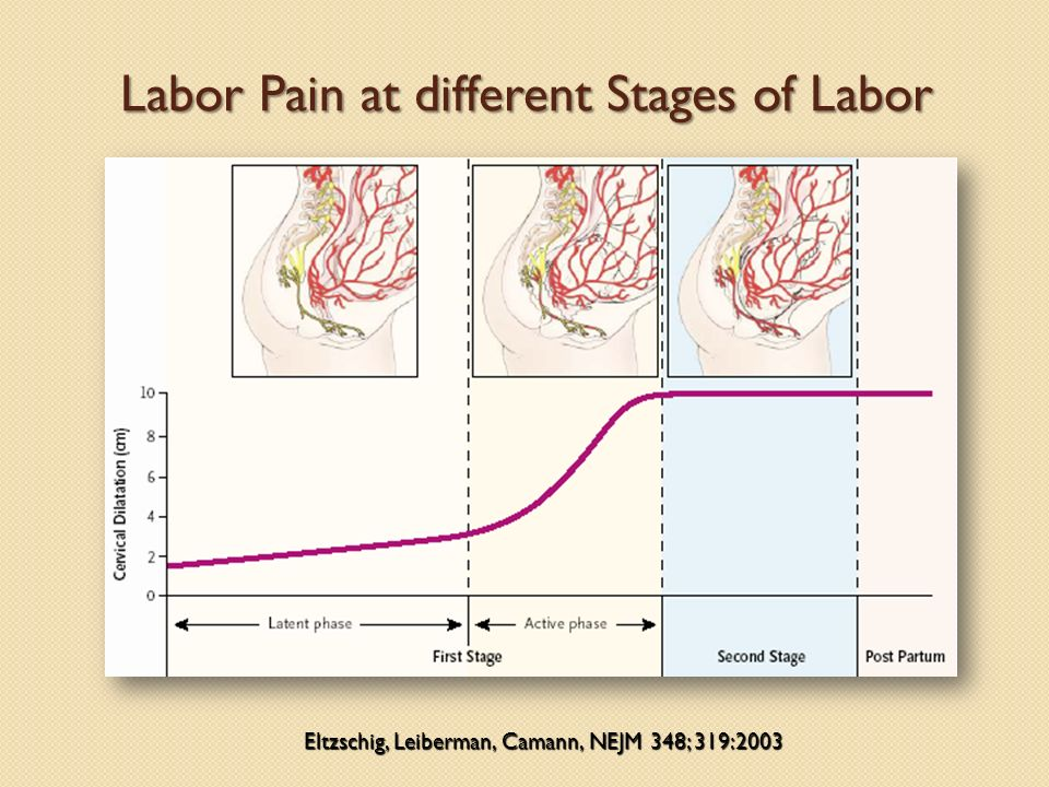Labor Pain at different Stages of Labor Eltzschig, Leiberman, Camann, NEJM 348; 319:2003