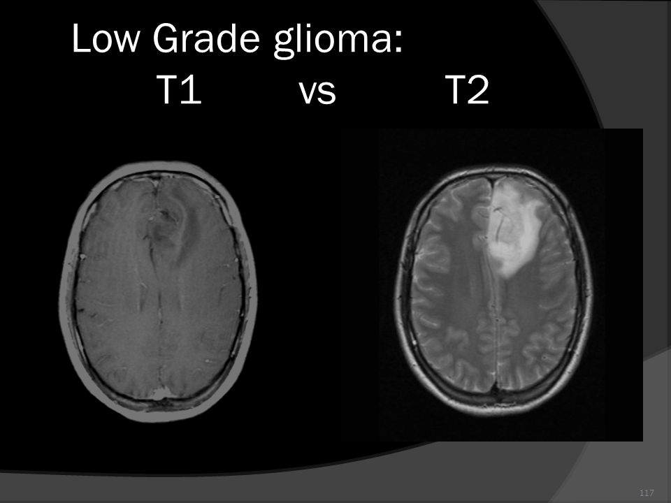 117 Low Grade glioma: T1 vs T2