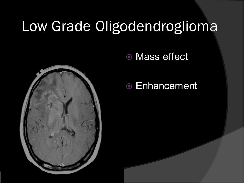 119 Low Grade Oligodendroglioma Mass effect Enhancement