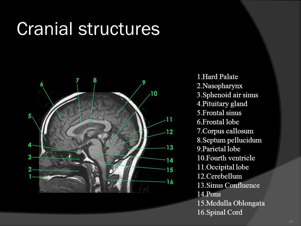 60 Cranial structures 1.Hard Palate 2.Nasopharynx 3.Sphenoid air sinus 4.Pituitary gland 5.Frontal sinus 6.Frontal lobe 7.Corpus callosum 8.Septum pel