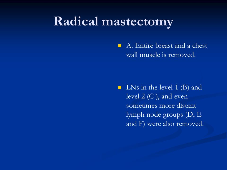 Radical mastectomy A. Entire breast and a chest wall muscle is removed. LNs in the level 1 (B) and level 2 (C ), and even sometimes more distant lymph