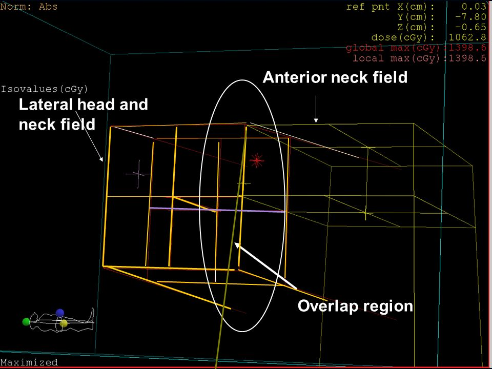 Anterior neck field Lateral head and neck field Overlap region