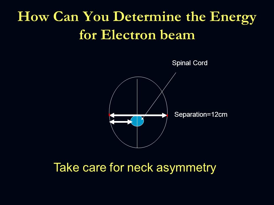 How Can You Determine the Energy for Electron beam Separation=12cm Spinal Cord Take care for neck asymmetry