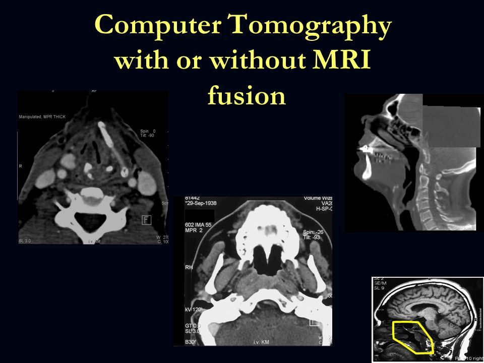 Computer Tomography with or without MRI fusion