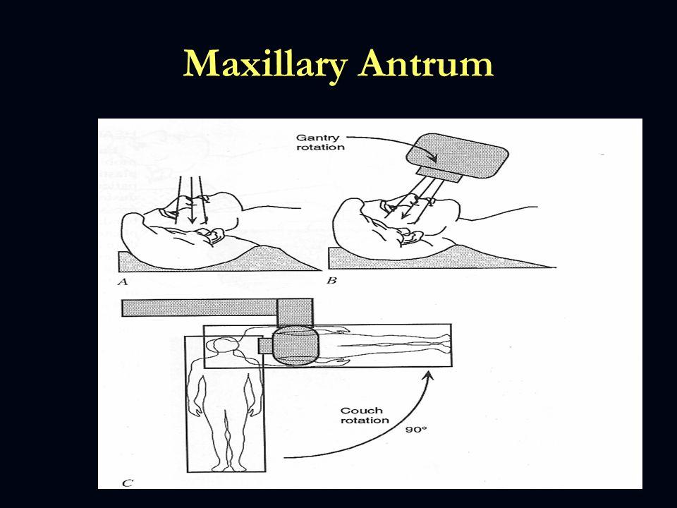 Maxillary Antrum