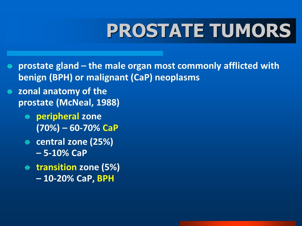 PROSTATE TUMORS prostate gland – the male organ most commonly afflicted with benign (BPH) or malignant (CaP) neoplasms zonal anatomy of the prostate (