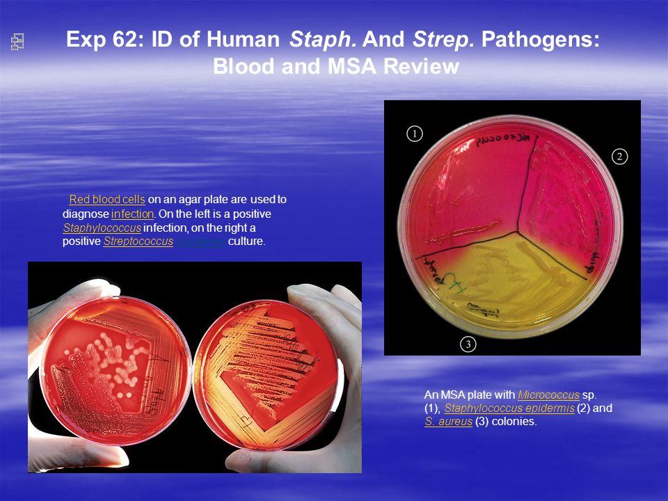 Exp 62: ID of Human Staph. And Strep. Pathogens: Blood and MSA Review An MSA plate with Micrococcus sp. (1), Staphylococcus epidermis (2) and S. aureu