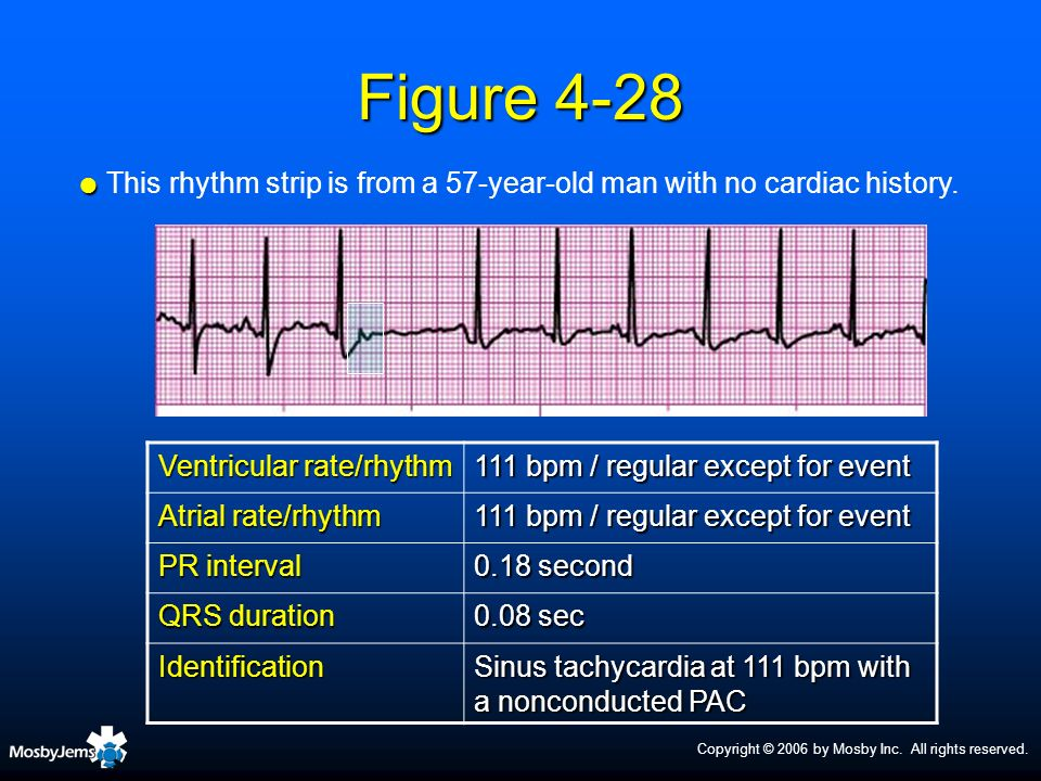 Copyright © 2006 by Mosby Inc. All rights reserved. Figure 4-28 Ventricular rate/rhythm 111 bpm / regular except for event Atrial rate/rhythm 111 bpm