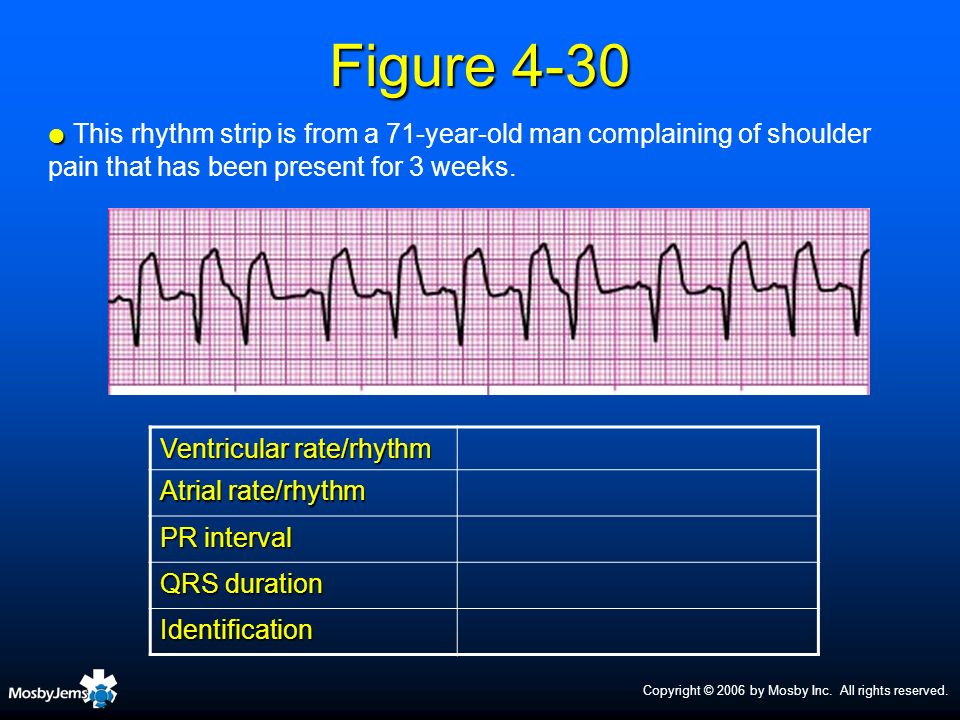 Copyright © 2006 by Mosby Inc. All rights reserved. Figure 4-30 Ventricular rate/rhythm Atrial rate/rhythm PR interval QRS duration Identification Thi