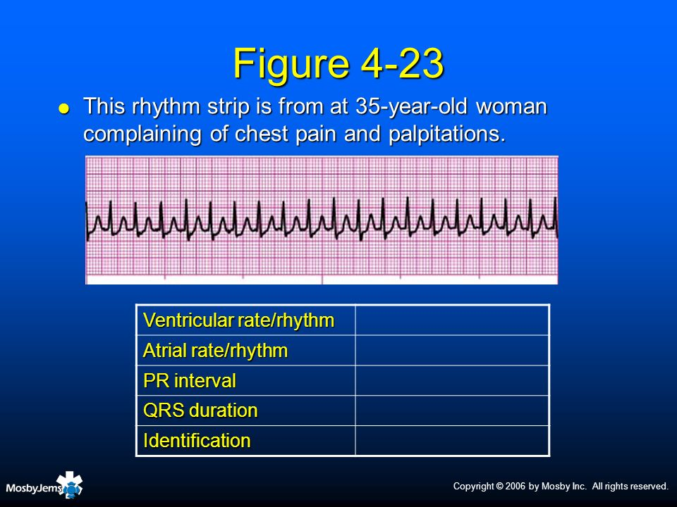 Copyright © 2006 by Mosby Inc. All rights reserved. Figure 4-23 This rhythm strip is from at 35-year-old woman complaining of chest pain and palpitati