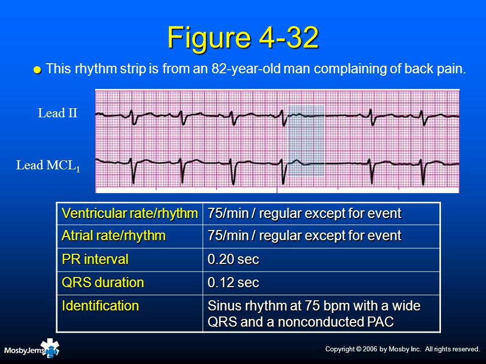 Copyright © 2006 by Mosby Inc. All rights reserved. Figure 4-32 Ventricular rate/rhythm 75/min / regular except for event Atrial rate/rhythm 75/min /