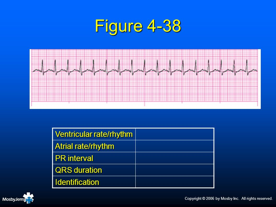 Copyright © 2006 by Mosby Inc. All rights reserved. Figure 4-38 Ventricular rate/rhythm Atrial rate/rhythm PR interval QRS duration Identification