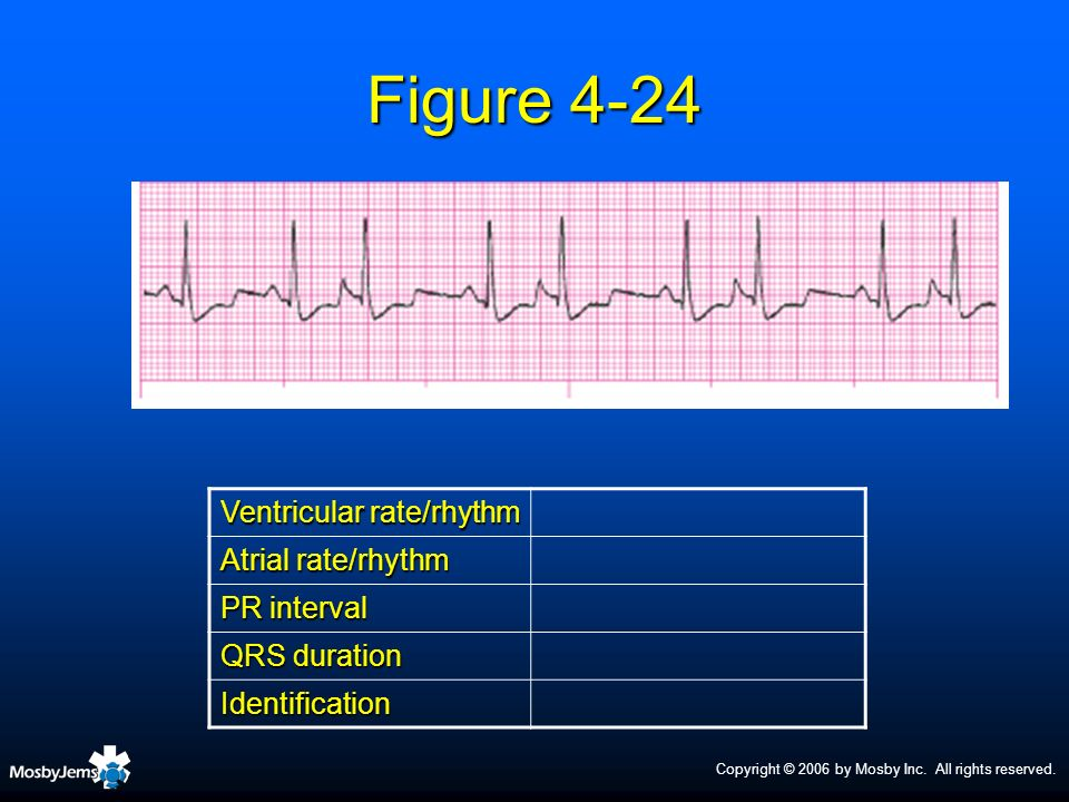 Copyright © 2006 by Mosby Inc. All rights reserved. Figure 4-24 Ventricular rate/rhythm Atrial rate/rhythm PR interval QRS duration Identification