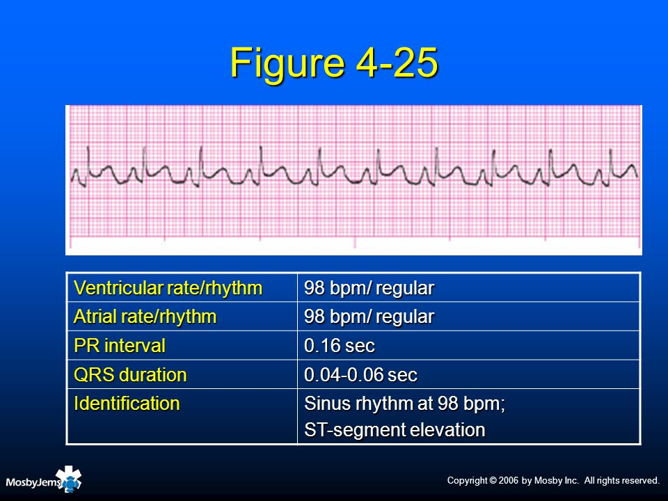 Copyright © 2006 by Mosby Inc. All rights reserved. Figure 4-25 Ventricular rate/rhythm 98 bpm/ regular Atrial rate/rhythm 98 bpm/ regular PR interval
