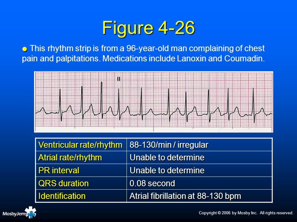 Copyright © 2006 by Mosby Inc. All rights reserved. Figure 4-26 Ventricular rate/rhythm 88-130/min / irregular Atrial rate/rhythm Unable to determine