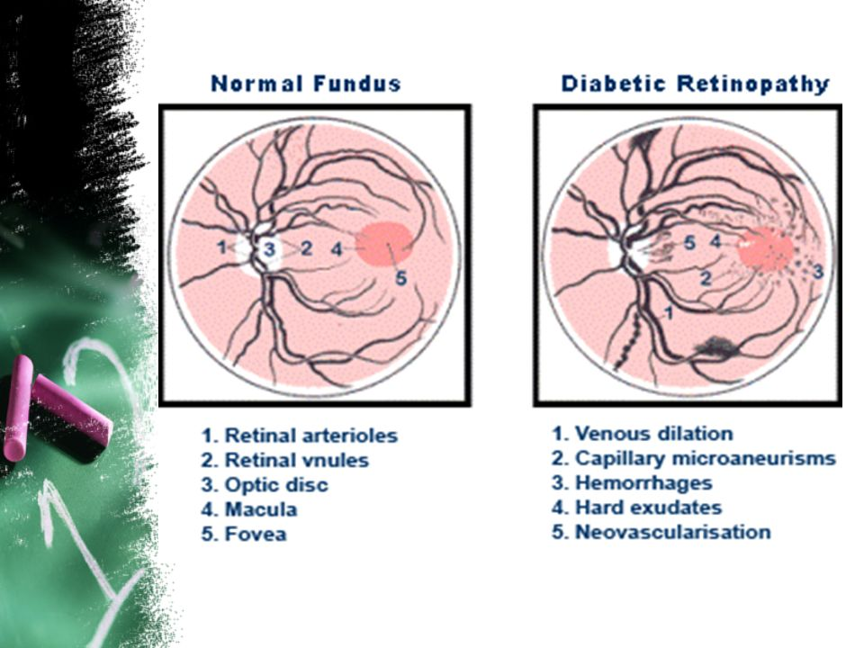 Definition of DR Characteristic group of lesions found in the retina of individuals having had diabetes mellitus for several years. Diabetic retinopat