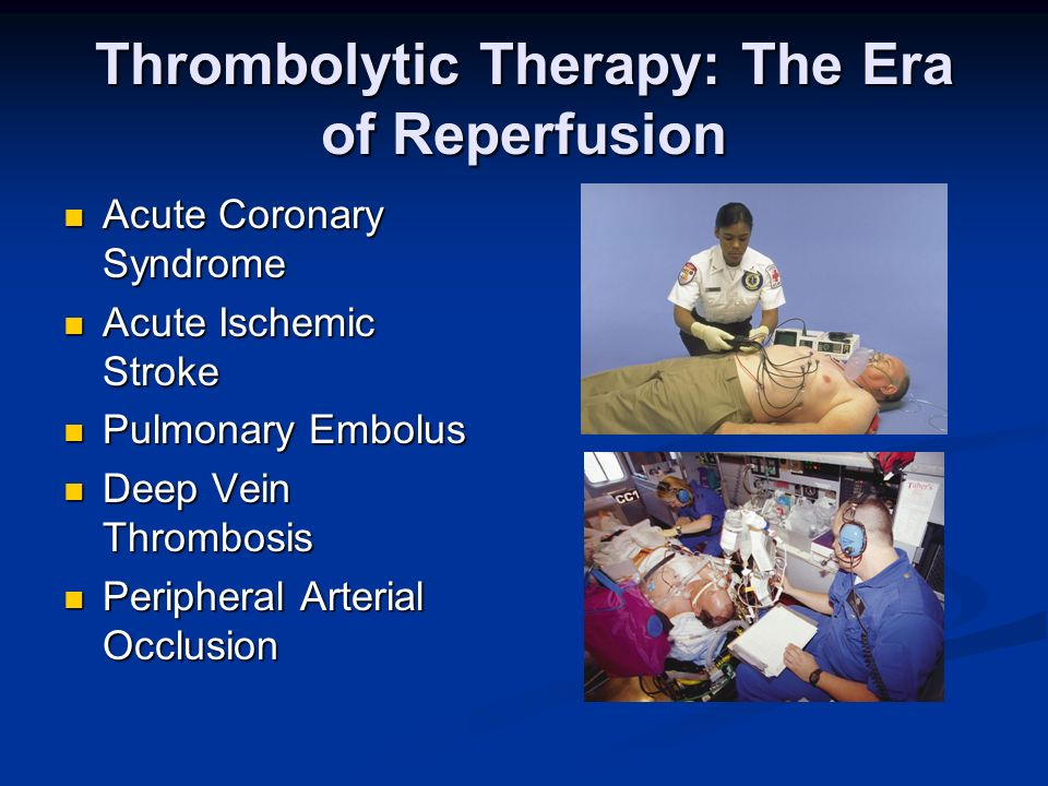 Thrombolytic Therapy: The Era of Reperfusion Acute Coronary Syndrome Acute Coronary Syndrome Acute Ischemic Stroke Acute Ischemic Stroke Pulmonary Emb