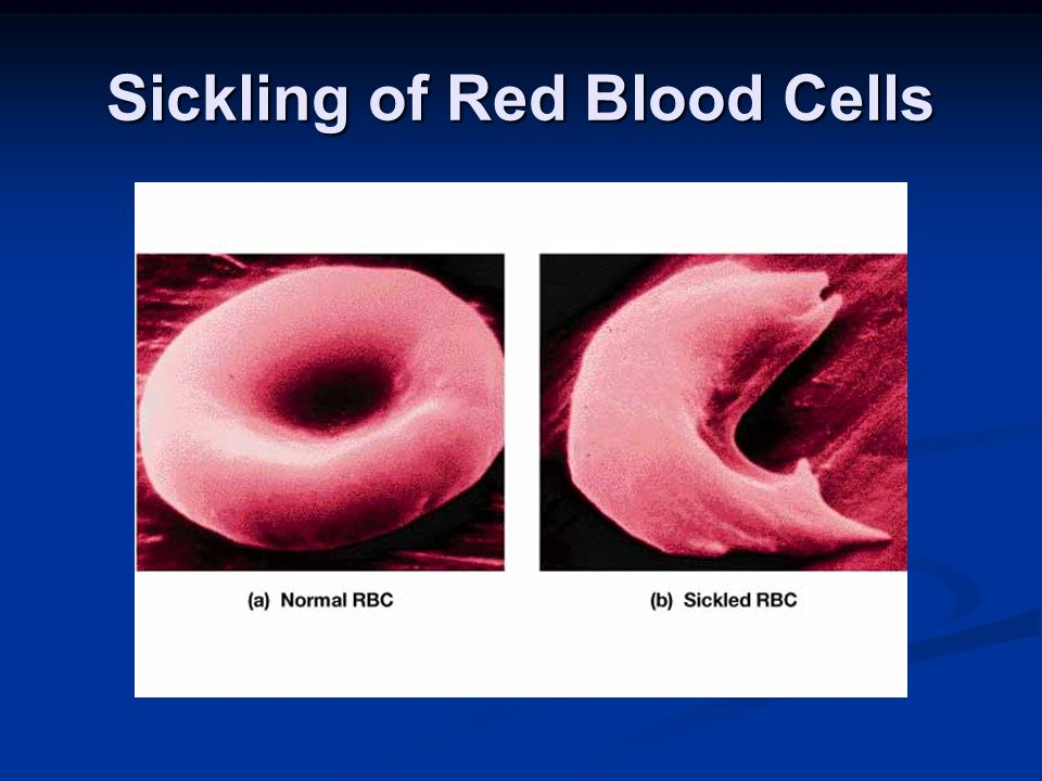Sickling of Red Blood Cells