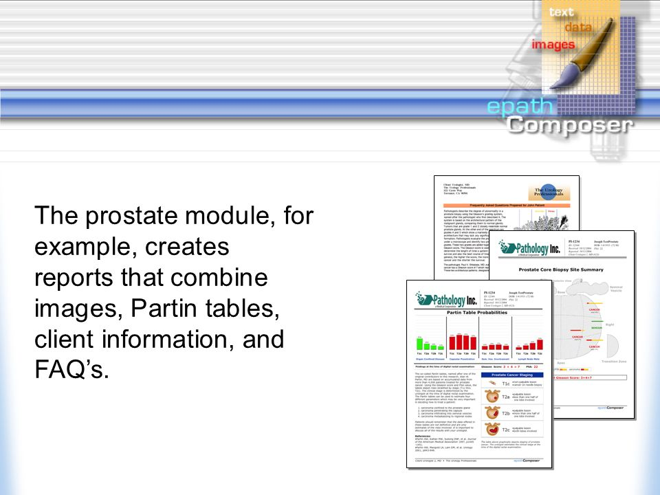 Several modules are available that create customized reports for breast, prostate, and other sites.