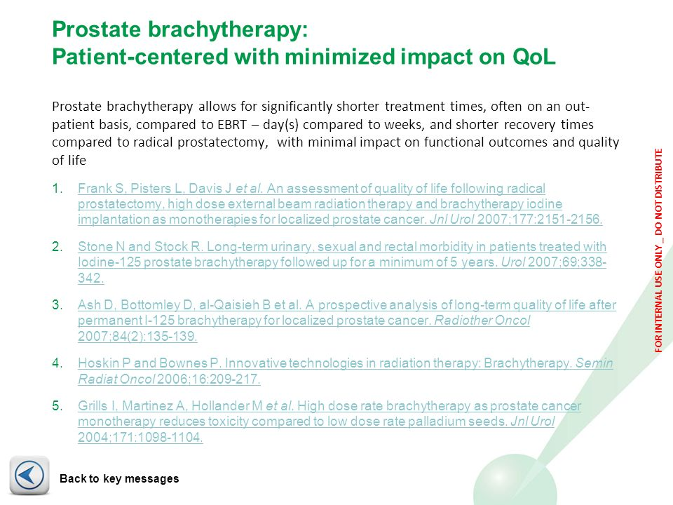 FOR INTERNAL USE ONLY _ DO NOT DISTRIBUTE Prostate brachytherapy: Patient-centered with minimized impact on QoL Prostate brachytherapy allows for sign