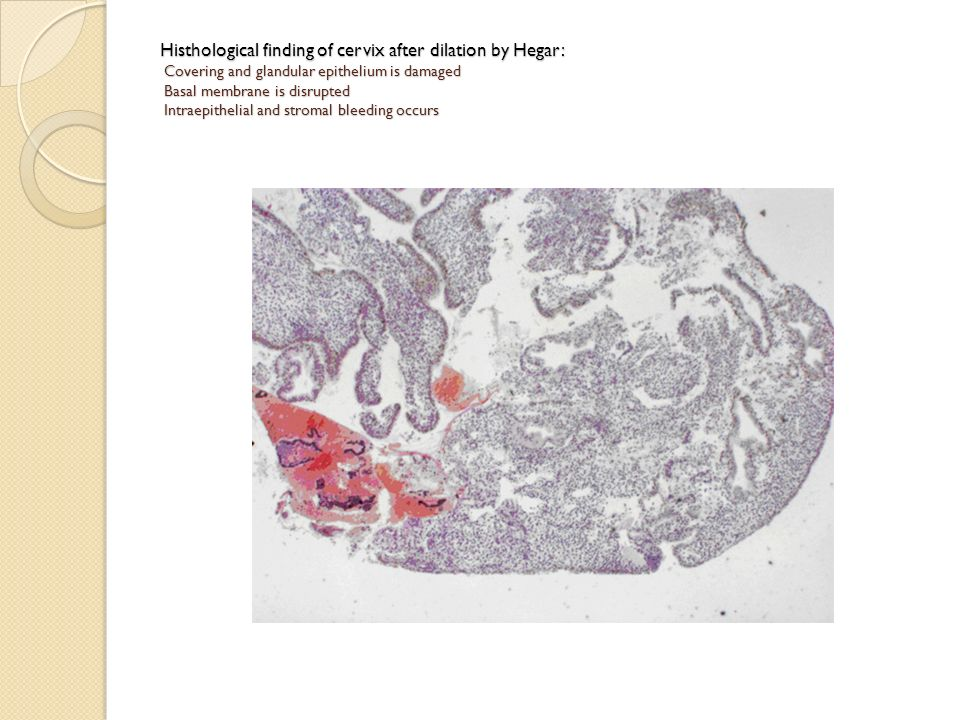Histhological finding of cervix after dilation by Hegar: Covering and glandular epithelium is damaged Basal membrane is disrupted Intraepithelial and