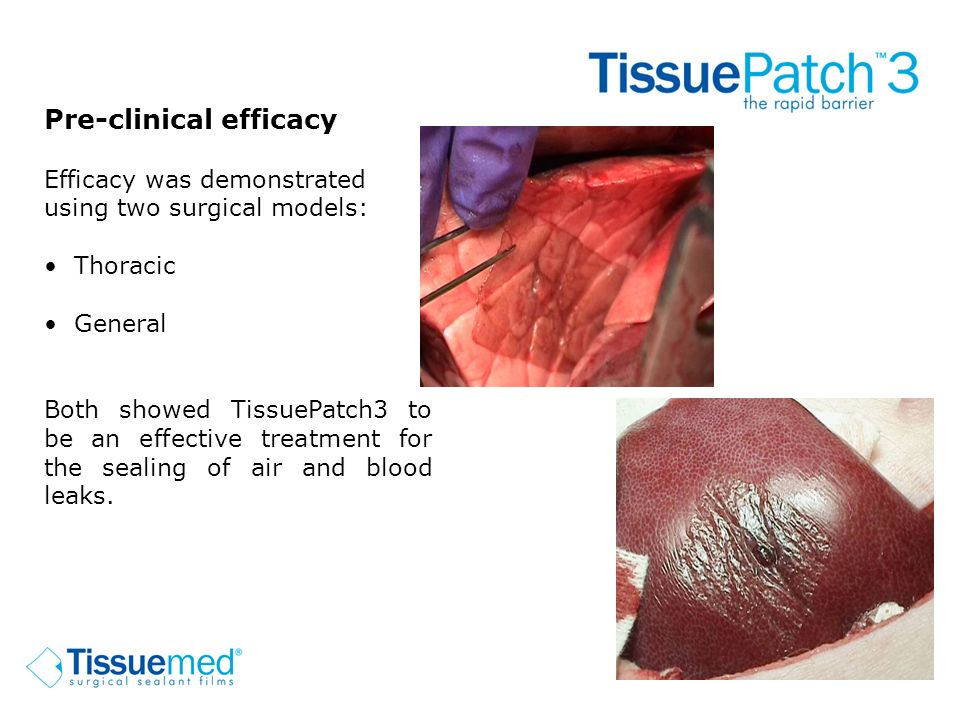 Pre-clinical efficacy Efficacy was demonstrated using two surgical models: Thoracic General Both showed TissuePatch3 to be an effective treatment for