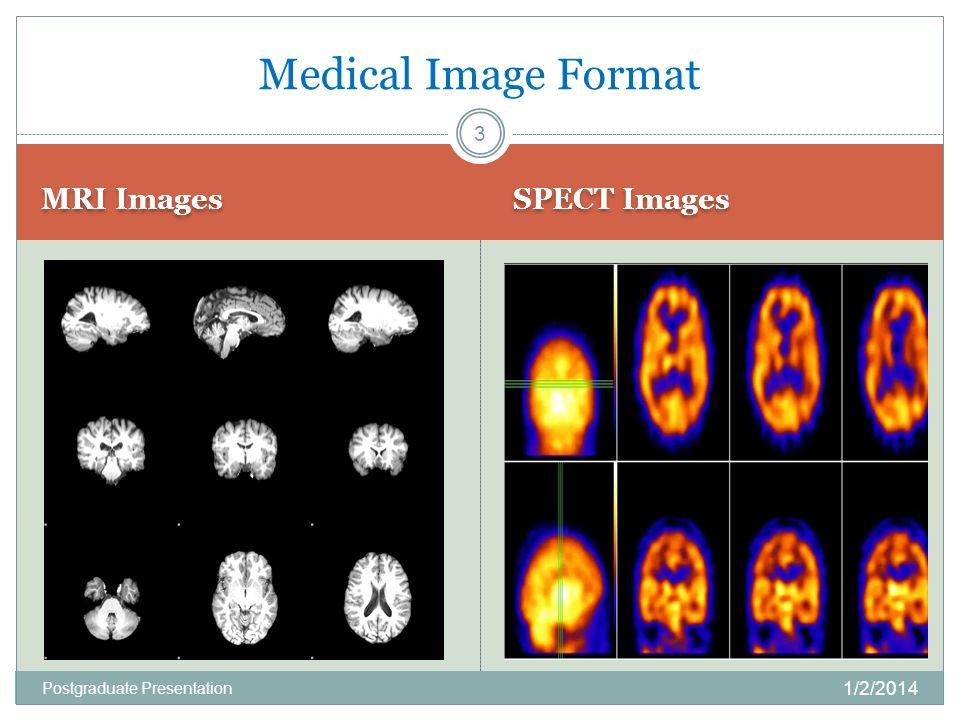 MRI Images SPECT Images Medical Image Format 1/2/2014 3 Postgraduate Presentation