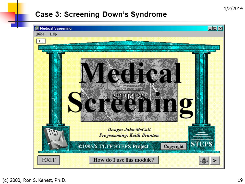 1/2/2014 (c) 2000, Ron S. Kenett, Ph.D.19 Case 3: Screening Downs Syndrome