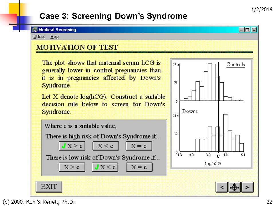 1/2/2014 (c) 2000, Ron S. Kenett, Ph.D.22 Case 3: Screening Downs Syndrome