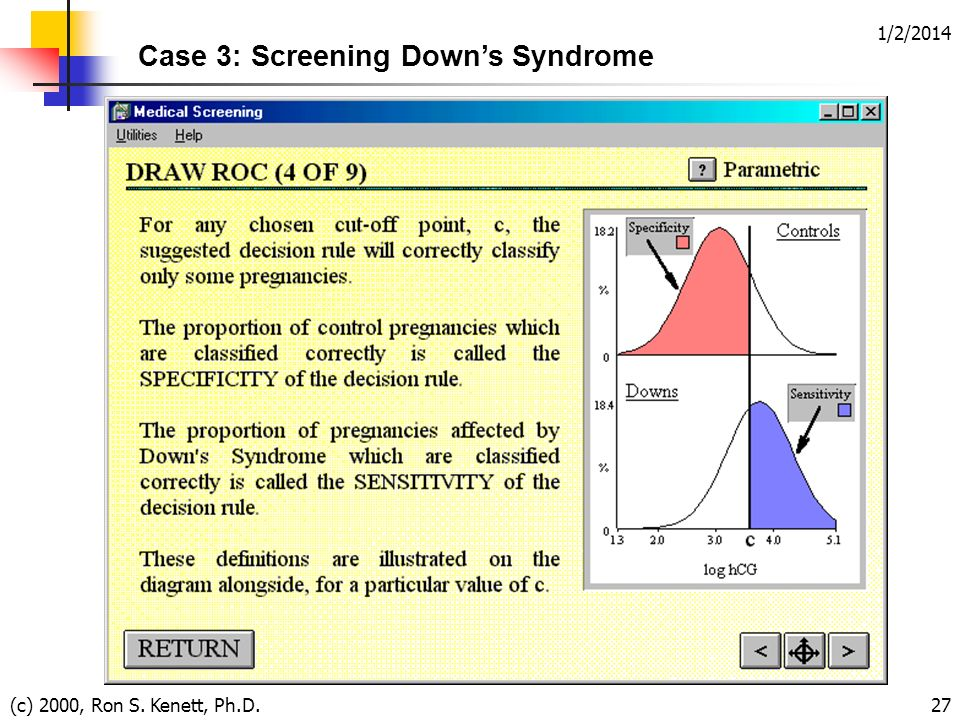 1/2/2014 (c) 2000, Ron S. Kenett, Ph.D.27 Case 3: Screening Downs Syndrome