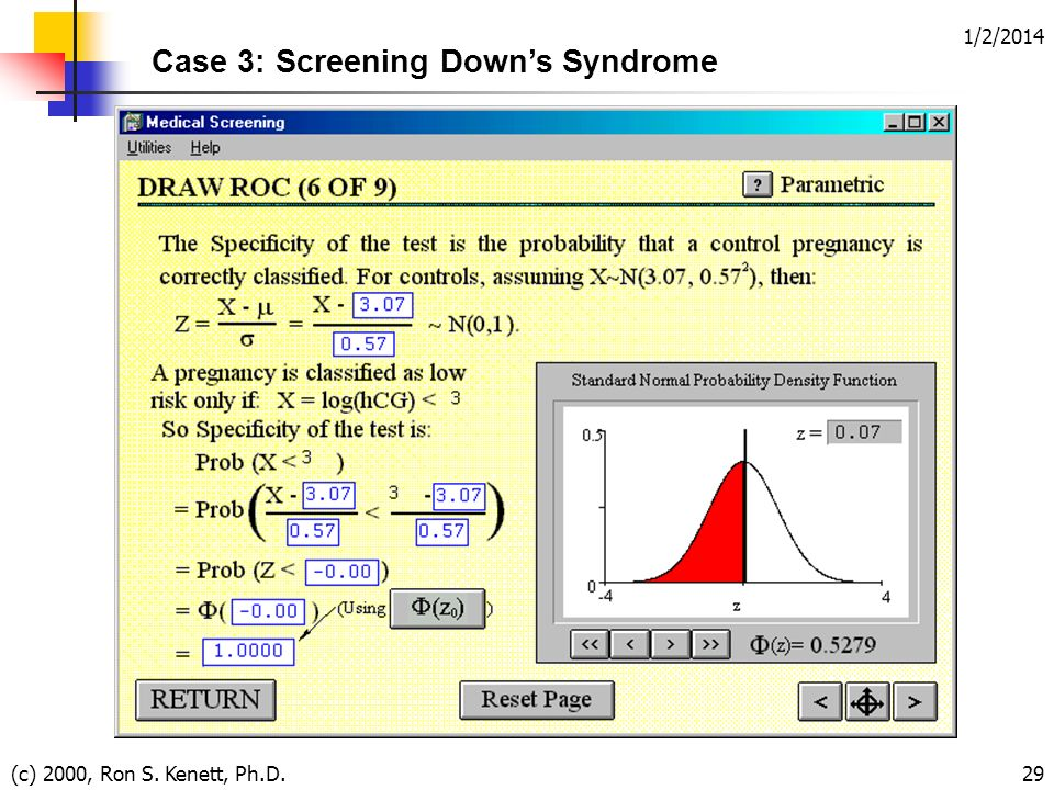 1/2/2014 (c) 2000, Ron S. Kenett, Ph.D.29 Case 3: Screening Downs Syndrome