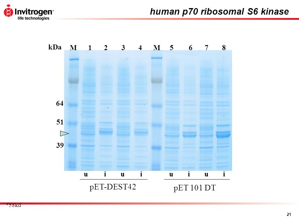 21 human p70 ribosomal S6 kinase 56784321MM uiuuuiii pET-DEST42 pET 101 DT kDa 51 64 39 *58kd