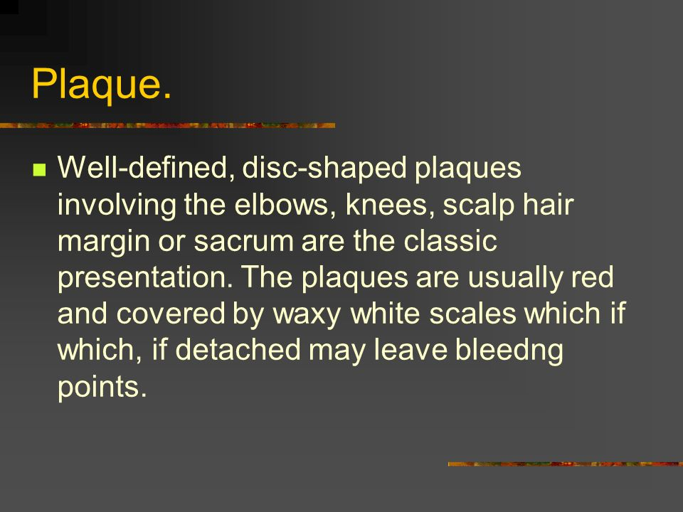 Plaque. Well-defined, disc-shaped plaques involving the elbows, knees, scalp hair margin or sacrum are the classic presentation. The plaques are usual