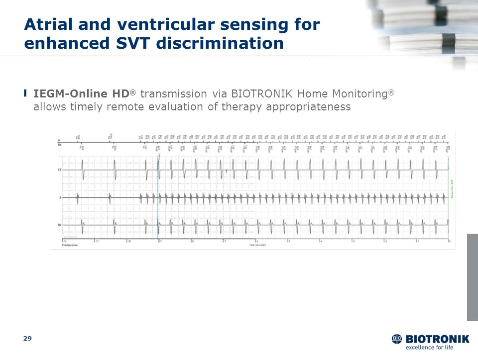 29 safe Atrial and ventricular sensing for enhanced SVT discrimination IEGM-Online HD ® transmission via BIOTRONIK Home Monitoring ® allows timely rem