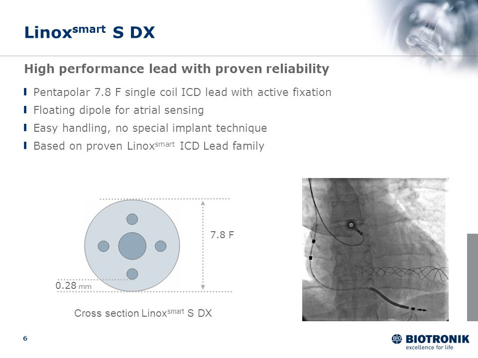 6 Linox smart S DX Pentapolar 7.8 F single coil ICD lead with active fixation Floating dipole for atrial sensing Easy handling, no special implant tec