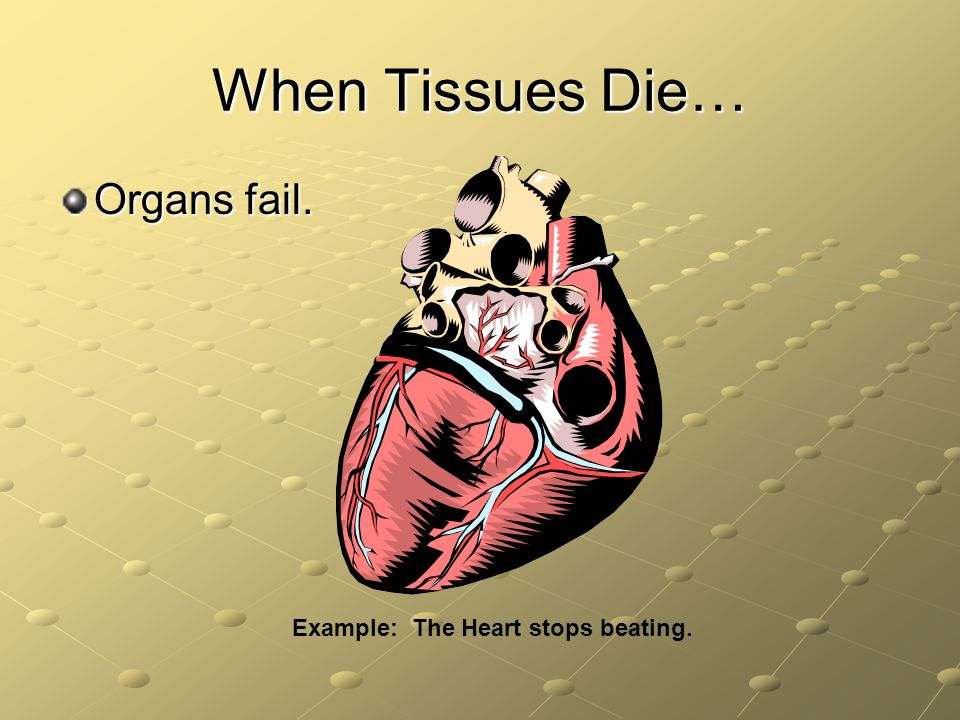 When Tissues Die… Organs fail. Example: The Heart stops beating.
