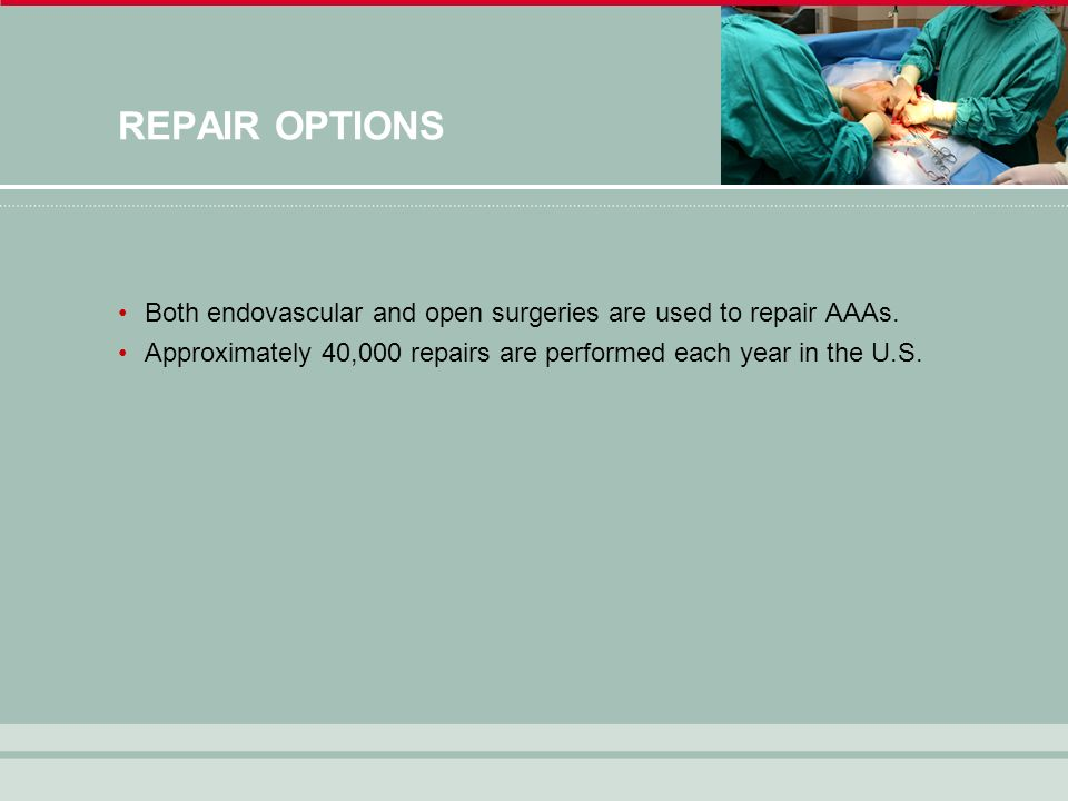 REPAIR OPTIONS Both endovascular and open surgeries are used to repair AAAs.