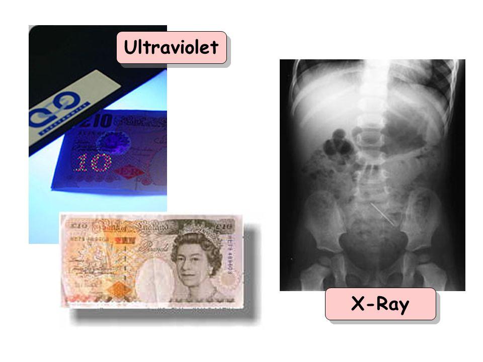 Ultraviolet X-Ray