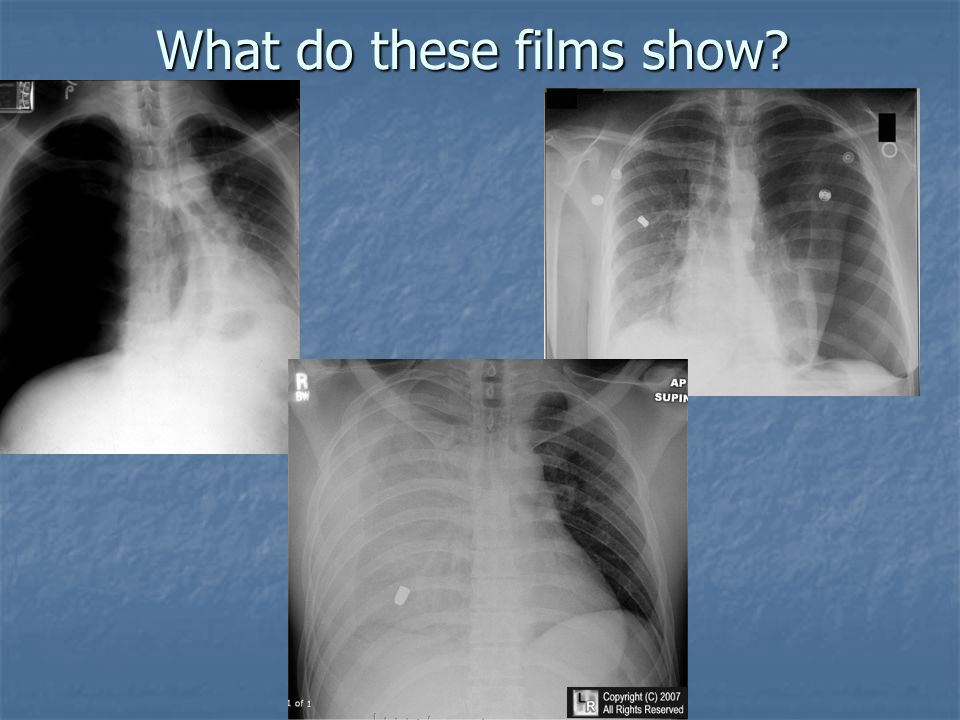What do these films show?