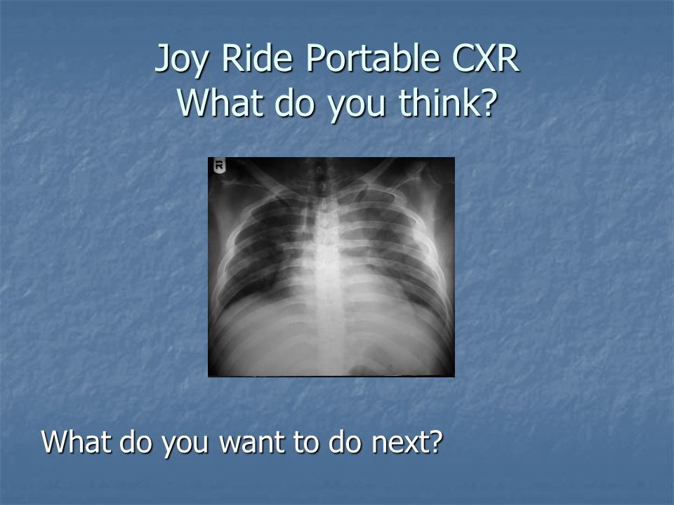 Joy Ride Portable CXR What do you think? What do you want to do next?